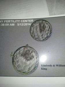 The Twins first picture together as 5 day old embryos. Pretty cool!